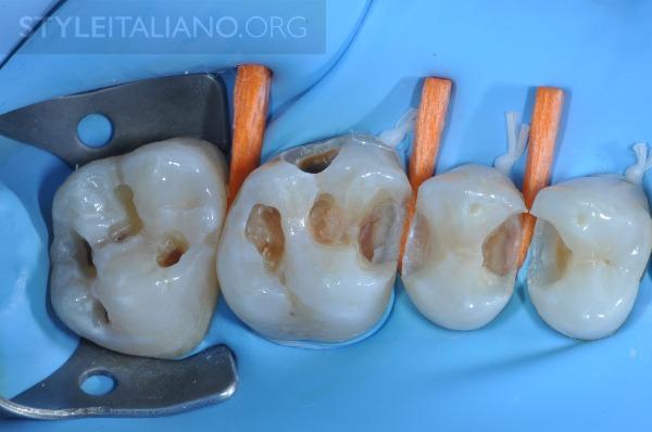 Восстановлению Задних Зубов