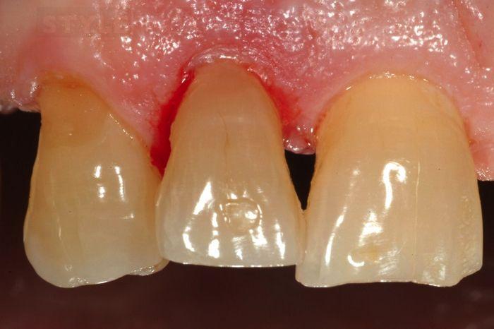 перелом коронки зуба