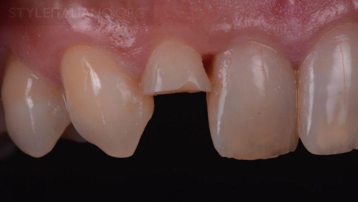 фрагмент зуба