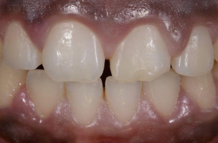 Реставрациях Передних Зубов Композитом