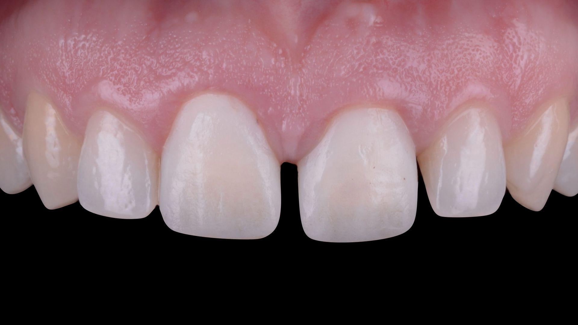 Фронтальных Зубов Верхней Челюсти