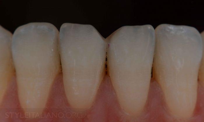 Метод Реставрации Фронтальных Зубов С Помощью Композитов И Виниров • OHI-S