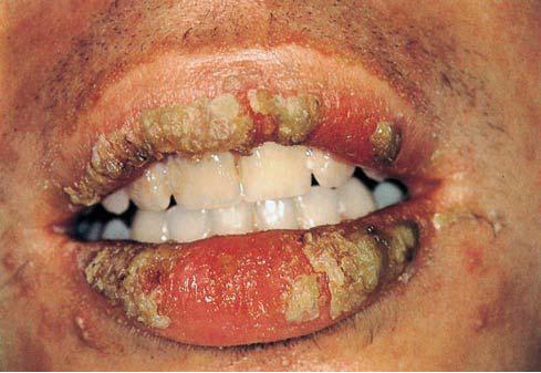 аллергический хейлит