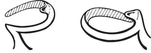 Бюгельные протезы на кламмерах (протезирование)