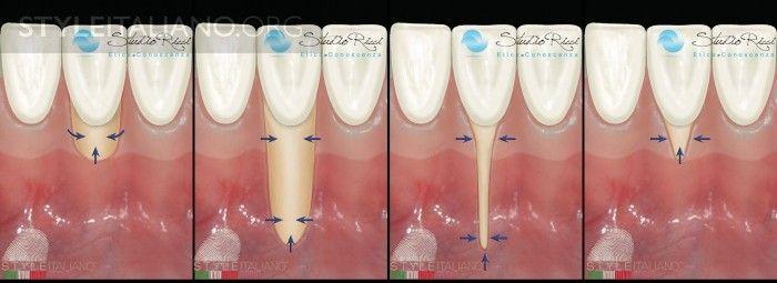 ортодонтического лечения
