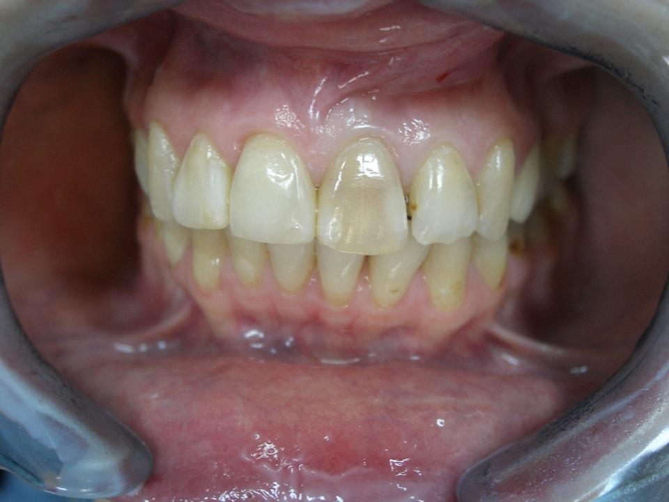 ушиб зуба лечение
