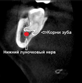 Лечение после травматичного удаления зуба