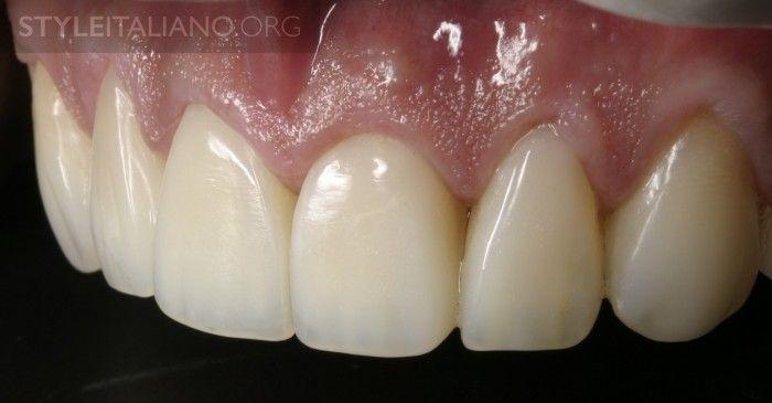 Стоматологическими Реставрациями