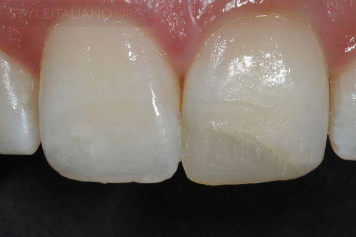 потемневших зубов
