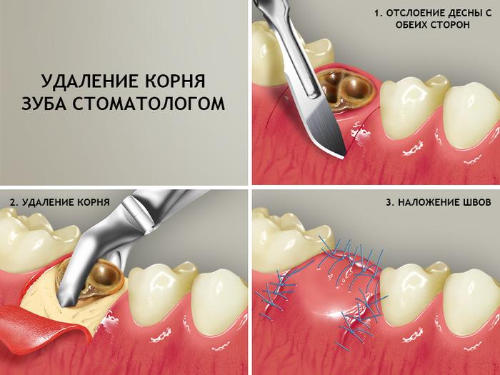 Элеватор при удалении зуба свечи накаливания для дизеля фольксваген транспортер т4