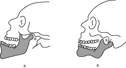Перелом челюсти после удаления зуба