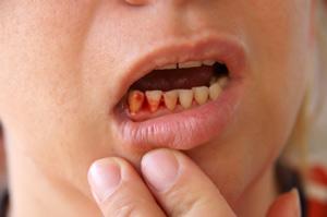 изменения слизистой оболочки полости рта при болезнях крови