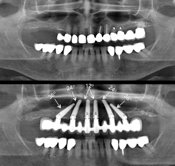 восстановлению полости рта