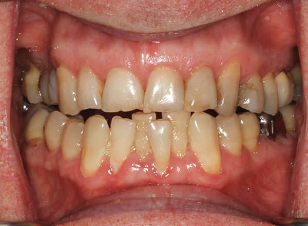 скученности зубов