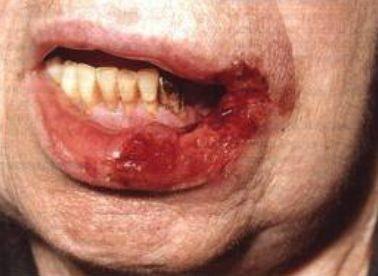 Тяжи слизистой оболочки полости рта